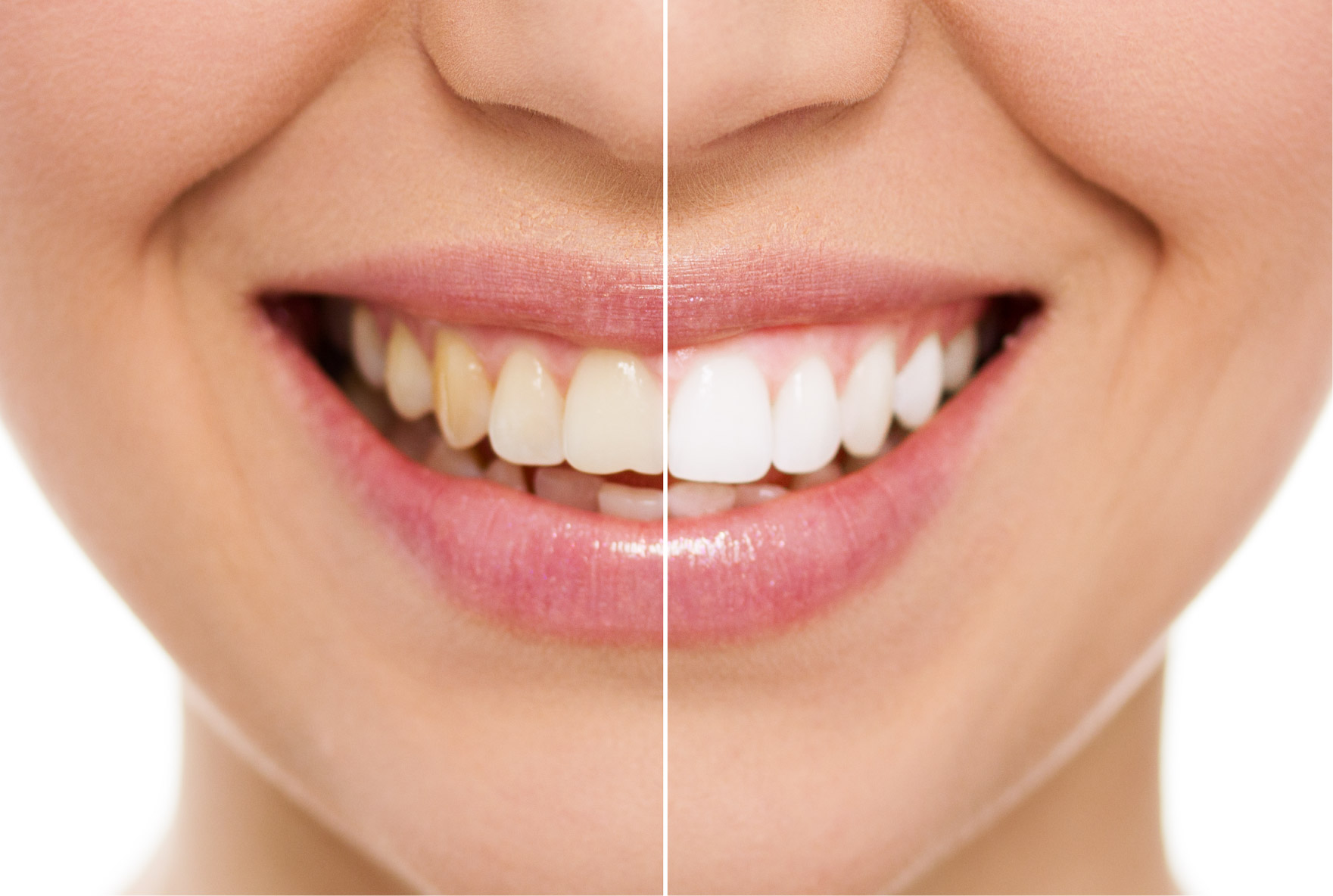 Cosmetic Dental Treatments__Teeth Whitening-