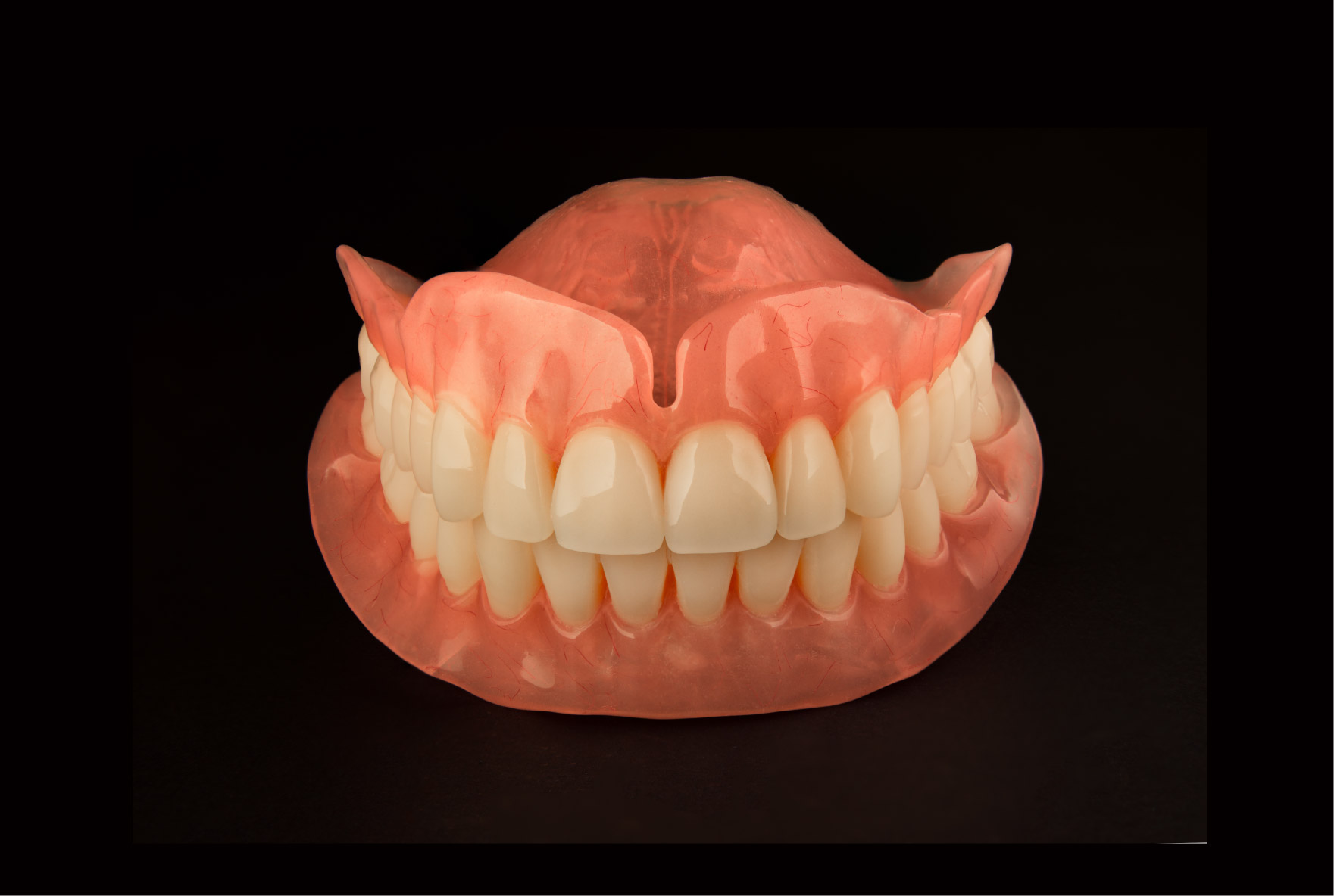 Dental Implant Treatments Dentures