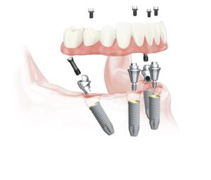 https://cdn2.hubspot.net/hubfs/5082671/lower_arch_allon4_ballarat_malo_clinic_face_smile.pnglower_arch_allon4_ballarat_malo_clinic_face_smile